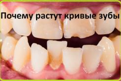 Почему растут кривые зубы