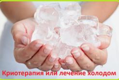 Криотерапия или лечение холодом